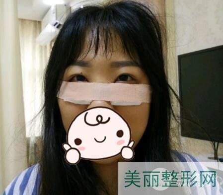 重庆西南医院美容整形科祛眼袋案例图