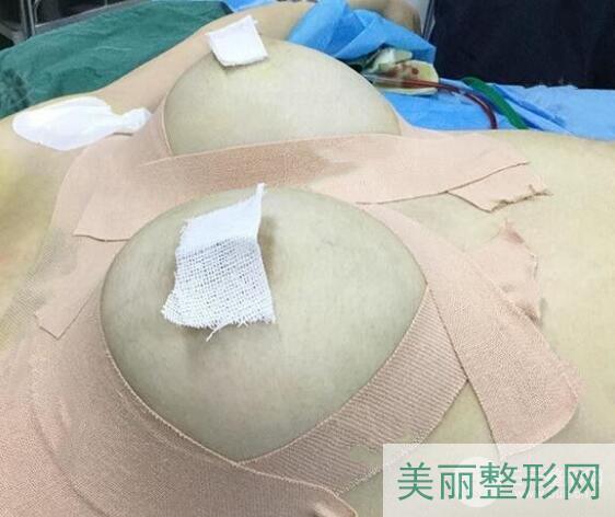 同济医院美容科价格价目表 吴毅平假体隆胸案例图