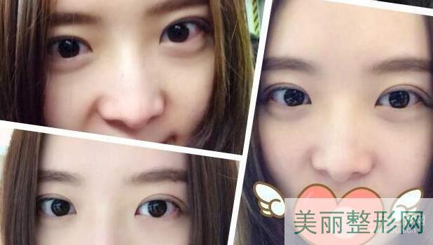 杭州市第三人民医院美容科双眼皮案例图