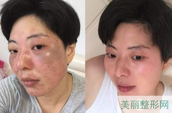 杭州市三医院激光美容中心激光祛斑案例图 价格表 多少钱