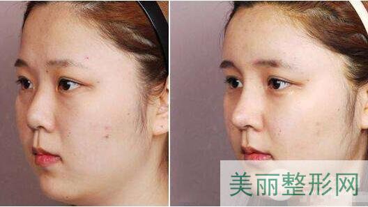 重医附一院美容科医生隆鼻技术好不好