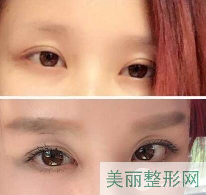 重医附一院美容科医生杨天荣双眼皮案例图