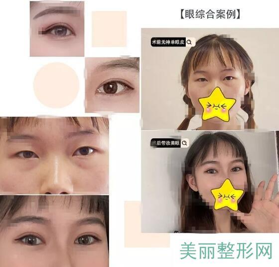 武汉天佑医院整形科双眼皮案例图
