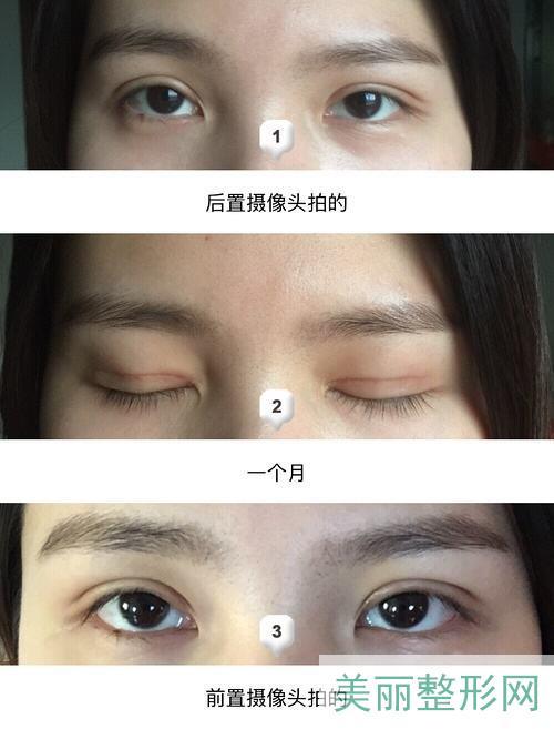 2020武汉武警医院整形外科双眼皮案例图 价格