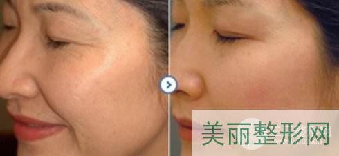 武汉一医整形科祛斑除皱案例图