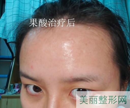 杭州第三人民医院激光美容科祛痘多少钱 案例图