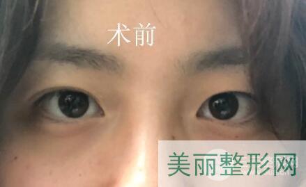 杭州第三人民医院整形外科双眼皮案例