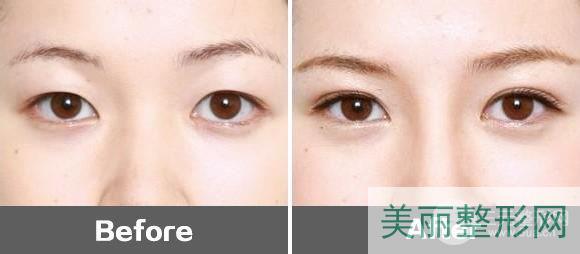 永川附二院整形美容科双眼皮案例图