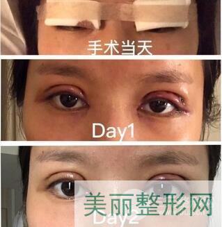 西南医院整形科双眼皮案例图