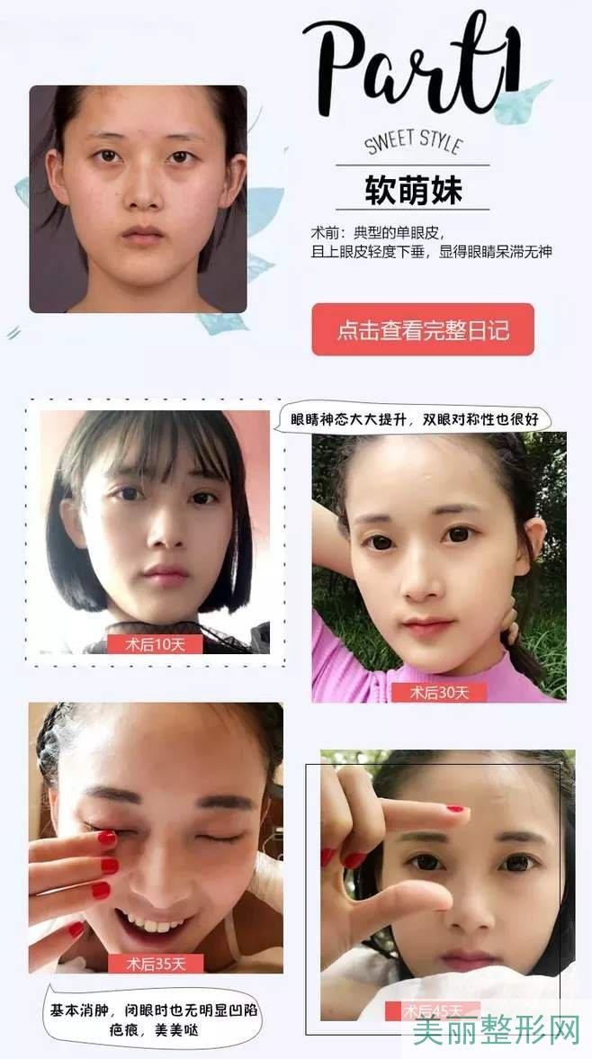 重医附三院美容整形科双眼皮案例图