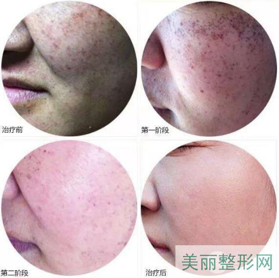 南京中医院整形外科祛斑案例图