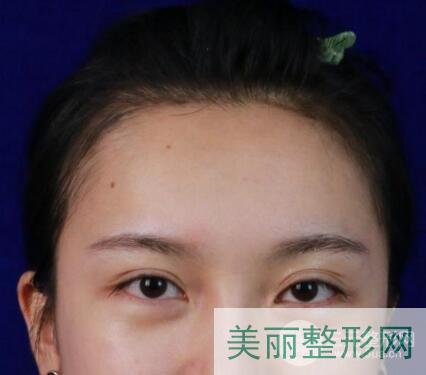 南京中大医院双眼皮修复案例图 价格