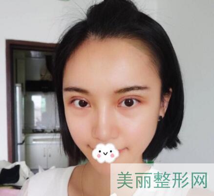 南京中大医院双眼皮修复