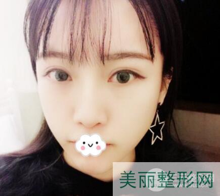 南京中大医院双眼皮修复多少钱