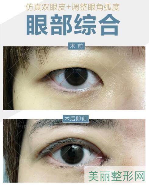 湖南省人民医院整形外科双眼皮案例图