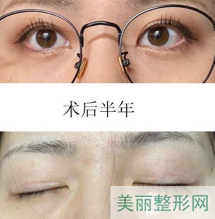 江苏中医院美容科双眼皮案例图 价格表