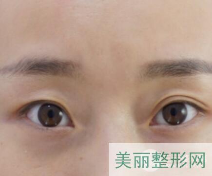 南京军区总医院割双眼皮案例图