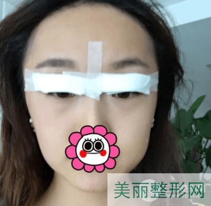 南京军区总医院割双眼皮多少钱