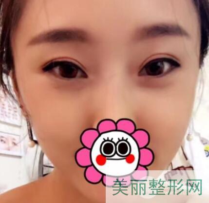 南京军区总医院割双眼皮好吗?来看看案例评价吧