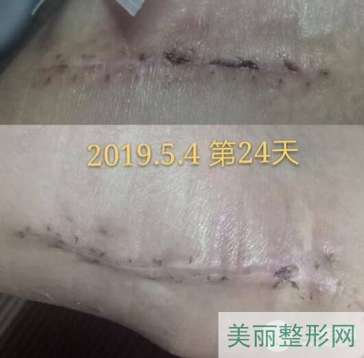 天津第一中心医院刘光晶祛疤案例