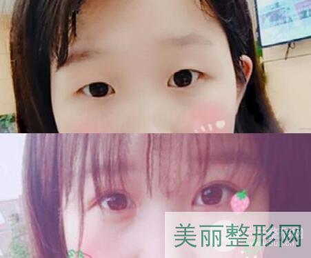 天津五中心医院整形美容科割双眼皮怎么样 案例图