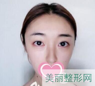 萧山第一人民医院整形科怎么样?分享双眼皮案例-公立也有好审美