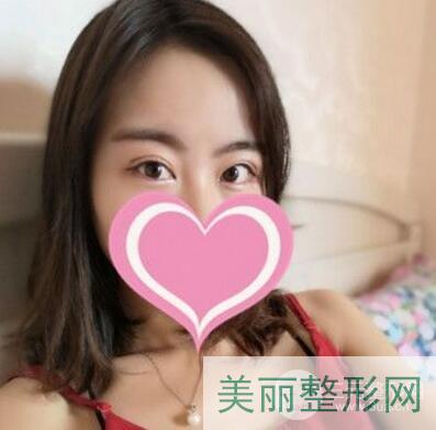 南京中西医结合医院整形科双眼皮案例图