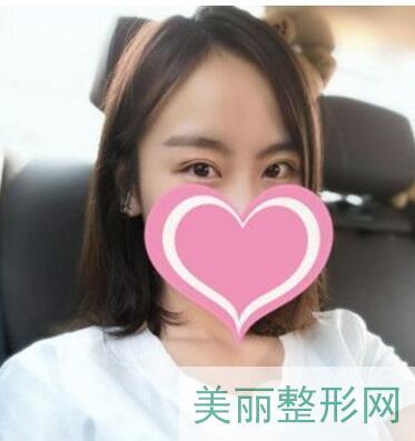 南京中西医结合医院整形科双眼皮技术好不好