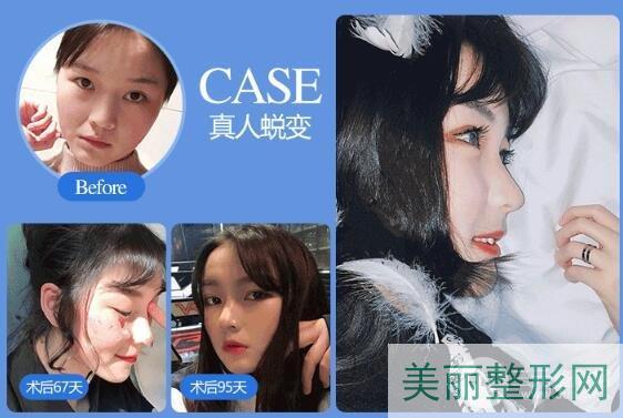 湖南省人民医院美容科隆鼻多少钱 哪个医生技术好