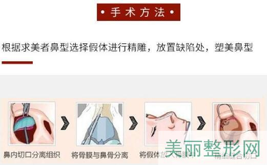 南京第一人民医院整形美容科隆鼻怎么样