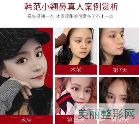 湖南省人民医院隆鼻案例图