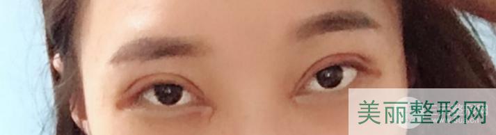 长沙人民医院美容科割双眼皮多少钱