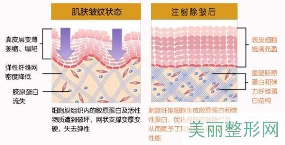 湘雅附一医院激光美容术技术好不好