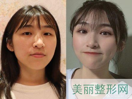 湘雅医院整形外科整形案例图集