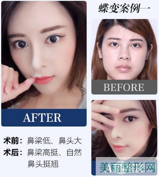 湖南省第二人民医院整形科隆鼻技术怎样