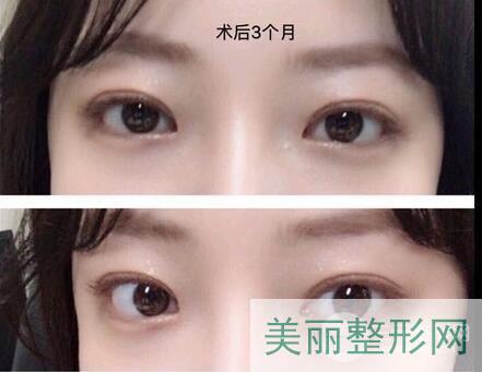 湘雅二医院整形科双眼皮案例