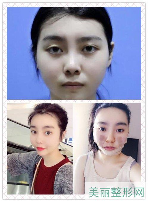 湘雅二医院美容整形科面部吸脂案例图