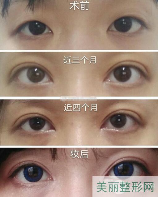 湘雅医院美容整形外科做双眼皮怎么样 案例图
