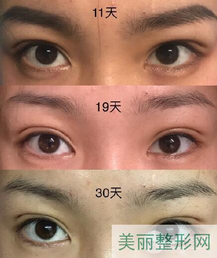 南通第三人民医院美容科双眼皮案例图