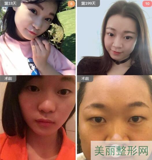 深圳鹏程整形医院双眼皮手术案例