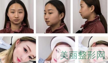 中山医院整形美容科隆鼻案例