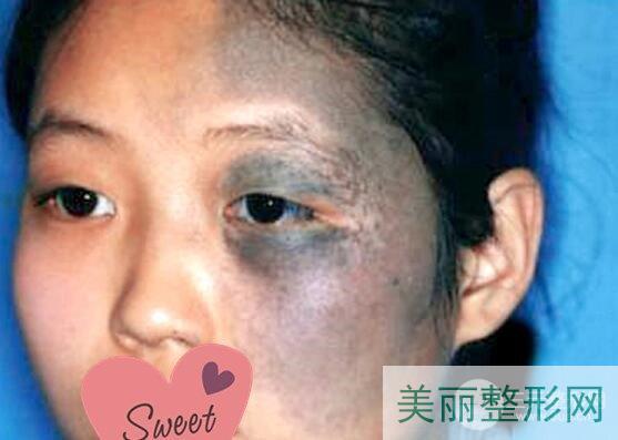 中山医院整形美容科祛除胎记案例