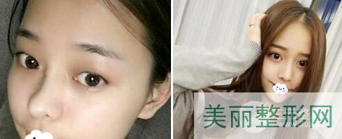 南昌大学第二附属医院医疗美容隆鼻案例