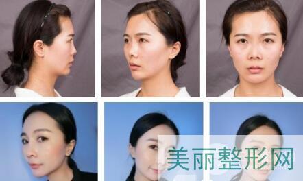 上海星璨整形医院鼻综合案例
