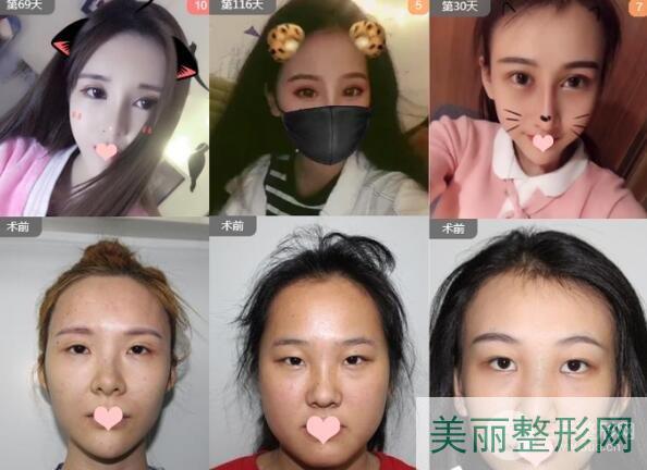 郑州二附院整形科双眼皮手术案例