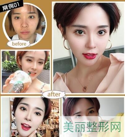 湘雅三医院整形科鼻综合案例