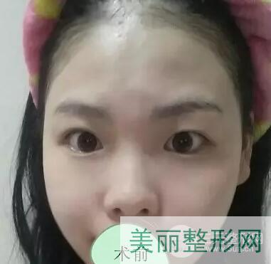 重庆新桥医院双眼皮手术术前