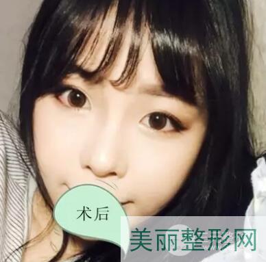 重庆新桥医院双眼皮手术术后一个月