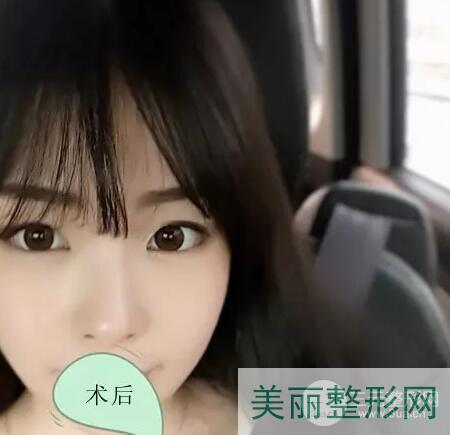 重庆新桥医院双眼皮手术术后半年