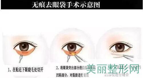 上海逆时针去眼袋怎么样?